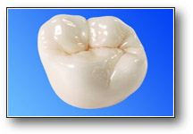 Stronger Repaired Teeth